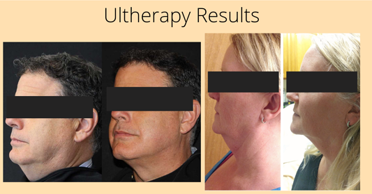 Ultherpy Before and after (1)